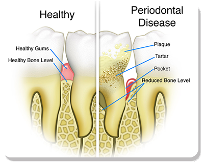 Periodontal Disease Treatment Bradenton